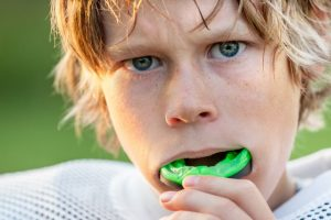 Custom Fit Mouth Guards